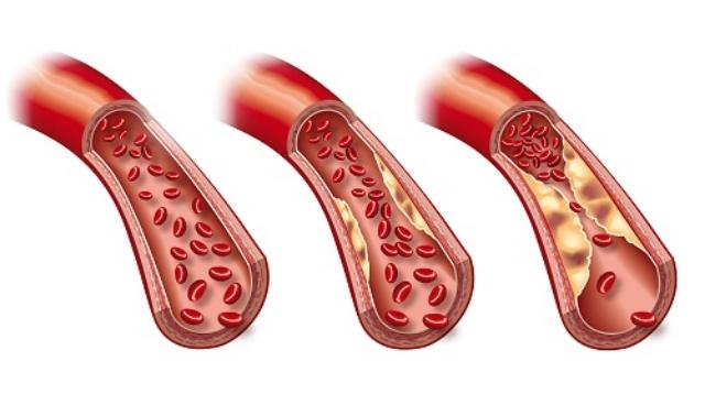 Trigliceridos - Arteriosclerosis
